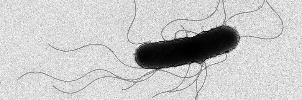 細菌感染症との闘いにも役立つ!?自由自在に動き回る細菌のべん毛を研究